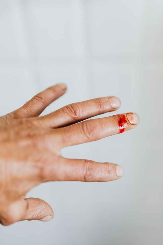 crop man hand with cut finger wound