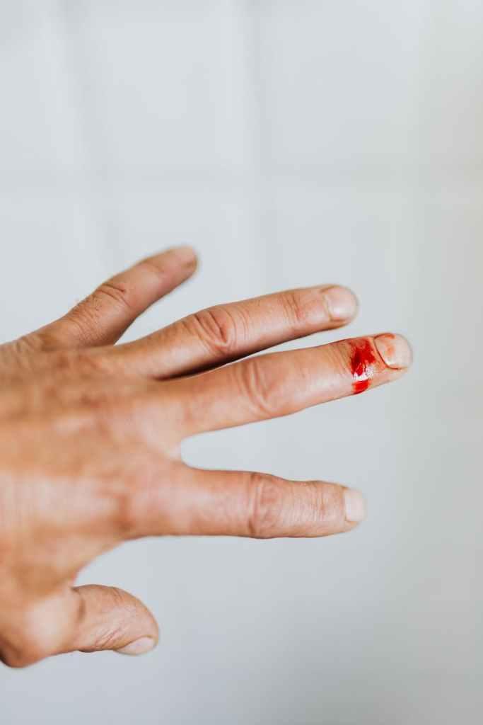 crop man hand with cut finger wound
